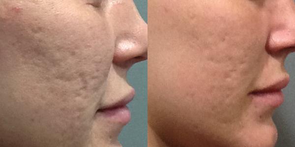 جوانسازی پوست با دکتر پن