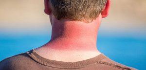 کرم زینک اکساید برای پوست
