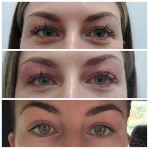 قبل و بعد از درمان افتادگی پلک با پلاسما پن